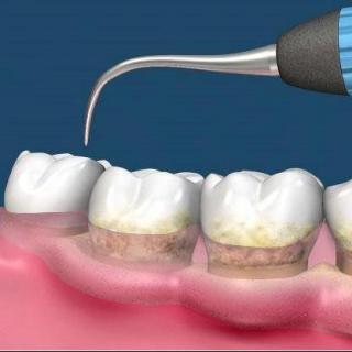 牙科丁卫红医师谈人生不同期牙的护理