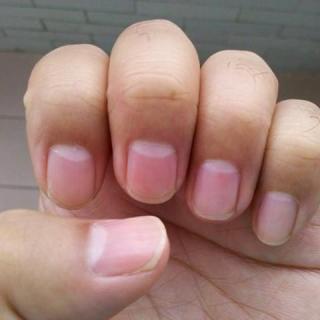 泽计:指甲透露健康,艾灸能补回消失的月牙吗?