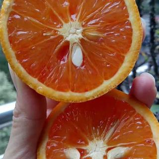 糖尿病患者应该怎样挑选水果?怎样吃水果?