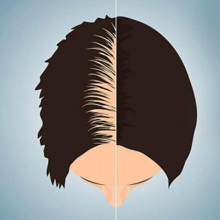 头发回来秃顶拜拜