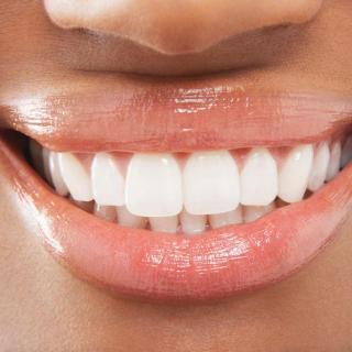 拥有一口完美笔直的牙齿