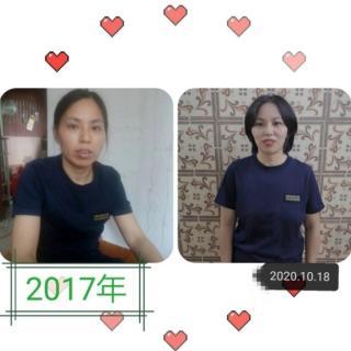 卵巢癌~林海峰